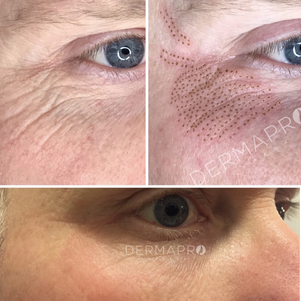 Natural Under Eye Lines Treatment
